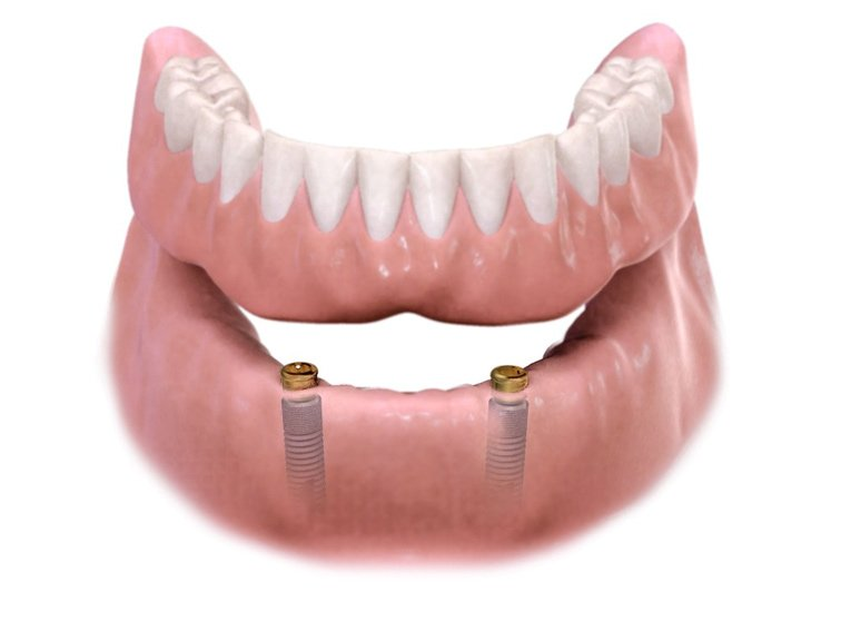 how to repair dentures in Newport News